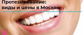 протезирование виды и цены в Москве