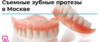 съемные зубные протезы в Москве