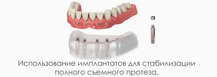 Варианты крепления съемного протеза к имплантатам