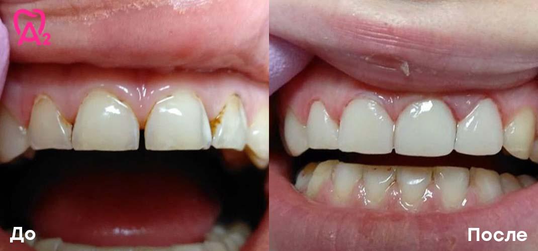 реставрация фронтальной группы зубов